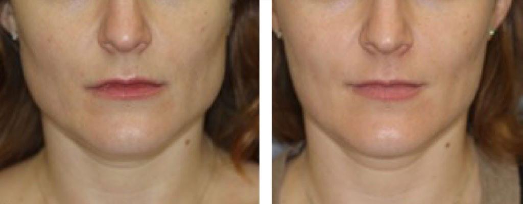 tanngnissing før og etter